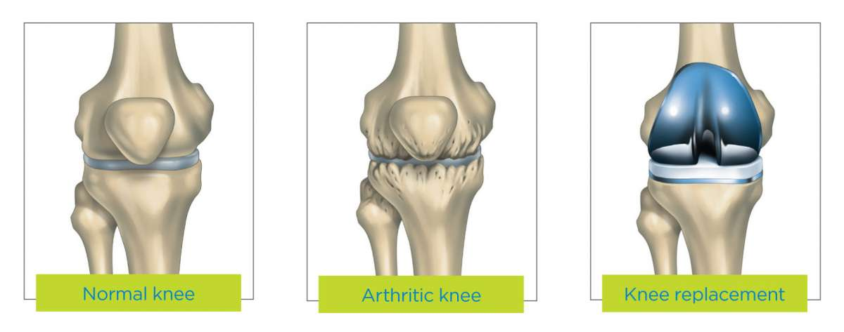 Knee replacement surgery | Via Christi Health, Kansas
